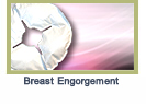 breastengorgement