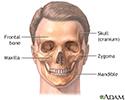 Craniofacial reconstruction - series