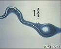 Lyme disease organism, Borrelia burgdorferi