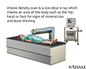 Bone density scan