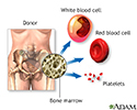 Bone-marrow transplant - series