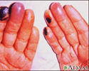 Cryoglobulinemia of the fingers