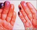 Cryoglobulinemia - of the fingers