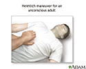 First Aid for Choking - unconscious adult or child over 1 year