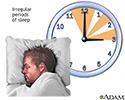 Irregular sleep