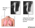 Pneumocystosis