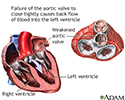 Aortic insufficiency