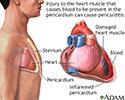 Pericarditis post-IM