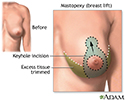 Breast lift (mastopexy) - series - Incisions