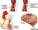 Plaque buildup in arteries