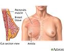 Breast augmentation - series - Normal anatomy