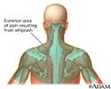 Location of whiplash pain