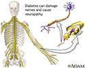 Diabetes and nerve damage