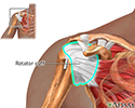 Rotator cuff repair - series - Normal rotator cuff