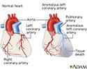 Anomalous left coronary artery