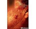 Squamous cell carcinoma - invasive