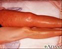 Deep venous thrombosis, iliofemoral