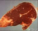 Hodgkin's disease - liver involvement