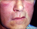 Erysipelas on the face