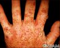 Porphyria cutanea tarda on the hands