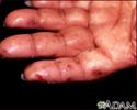 Dermatitis herpetiformis on the hand