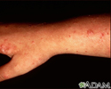 Polymorphic light eruption on the arm