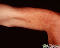 Telangiectasias - upper arm