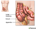 Appendectomy - series