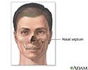 Septoplasty - series - Septal anatomy