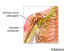 Damaged axillary nerve