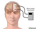 Brain wave monitor