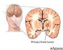 Primary brain tumor