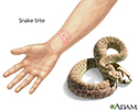 Snake bite