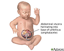 Infant omphalocele