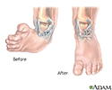 Clubfoot deformity