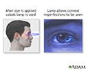 Fluorescent eye test