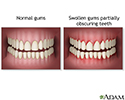 Swollen gums