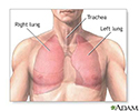 Normal lung anatomy