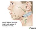 Lymph node culture