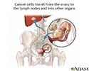 Ovarian cancer metastasis