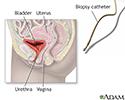 Ureteral biopsy