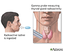 Thyroid uptake test