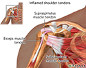 Inflamed shoulder tendons
