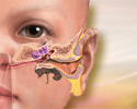 After your child's ear tube surgery
