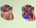 Congenital heart defects (CHD) overview