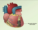 Heart attack (myocardial infarction) overview