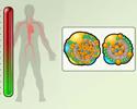 Heart disease modifiable risk factors - hyperlipidemia